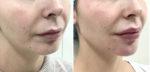 Углы нижней челюсти и подбородок-Радиес