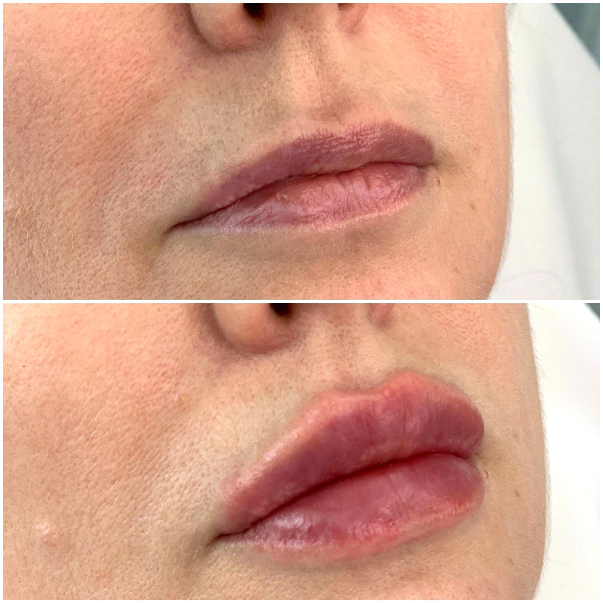 Отек после увеличения губ: ответы на вопросы