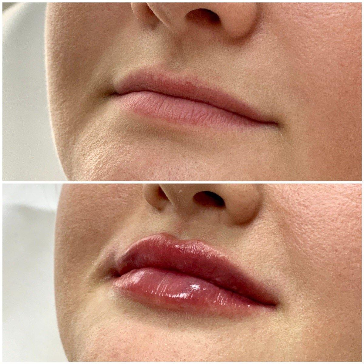 электропорация губ фото до и после для связи