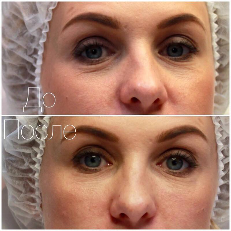 Фото до и после процедуры - заполнение филлером носослезной борозды